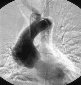 Aortic Root Aneurysm
